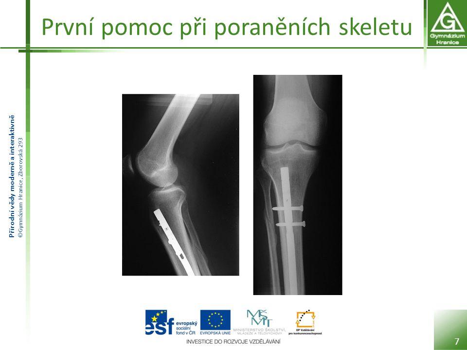 Přírodní vědy moderně a interaktivně ©Gymnázium Hranice, Zborovská 293 První pomoc při poraněních skeletu 7