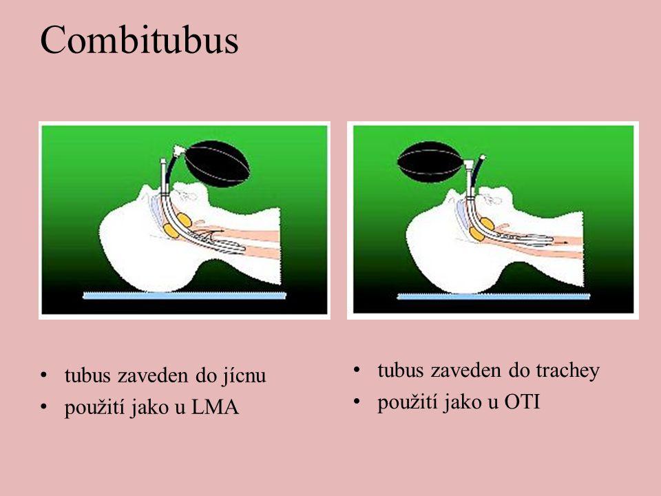 Combitubus • tubus zaveden do jícnu • použití jako u LMA • tubus zaveden do trachey • použití jako u OTI
