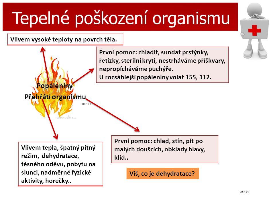 Tepelné poškození organismu Popáleniny Přehřátí organismu Obr.13 Obr.14 Vlivem vysoké teploty na povrch těla. První pomoc: chladit, sundat prstýnky, ř