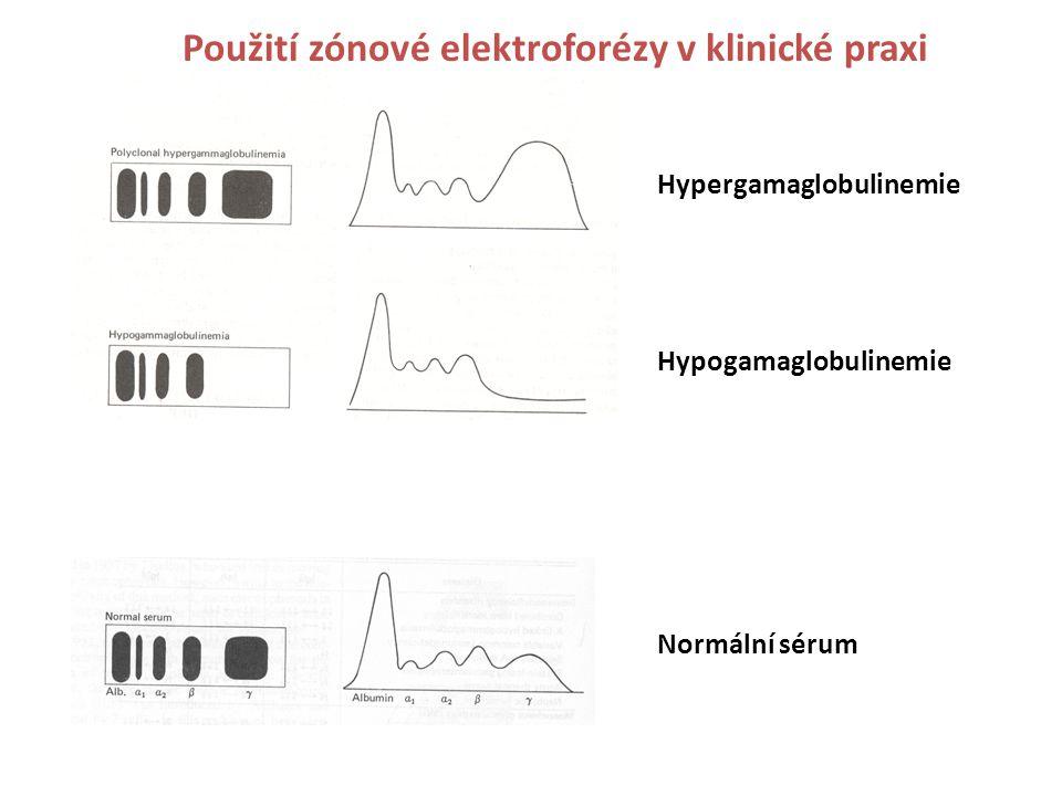 Hypergamaglobulinemie Hypogamaglobulinemie Normální sérum Použití zónové elektroforézy v klinické praxi
