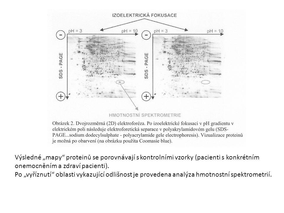 """Výsledné """"mapy proteinů se porovnávají s kontrolními vzorky (pacienti s konkrétním onemocněním a zdraví pacienti)."""