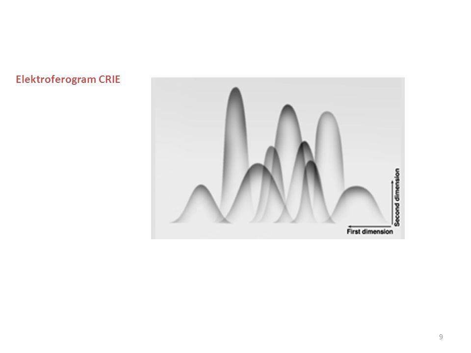 9 Elektroferogram CRIE