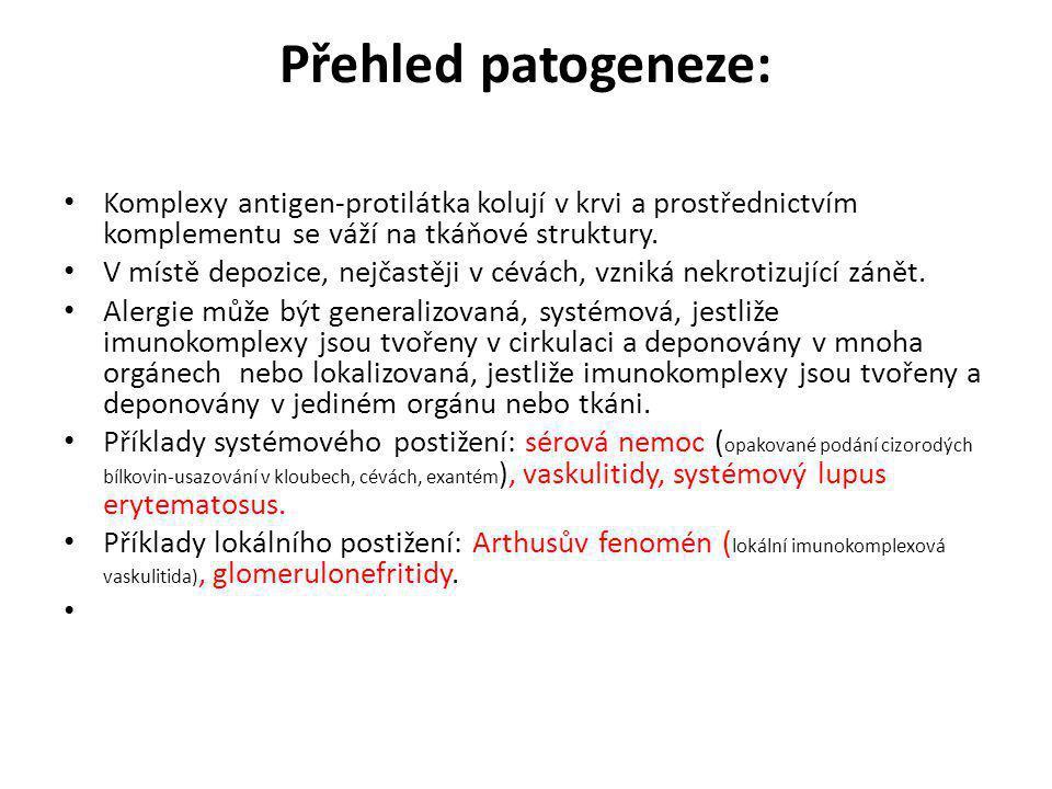 Přehled patogeneze: • Komplexy antigen-protilátka kolují v krvi a prostřednictvím komplementu se váží na tkáňové struktury. • V místě depozice, nejčas