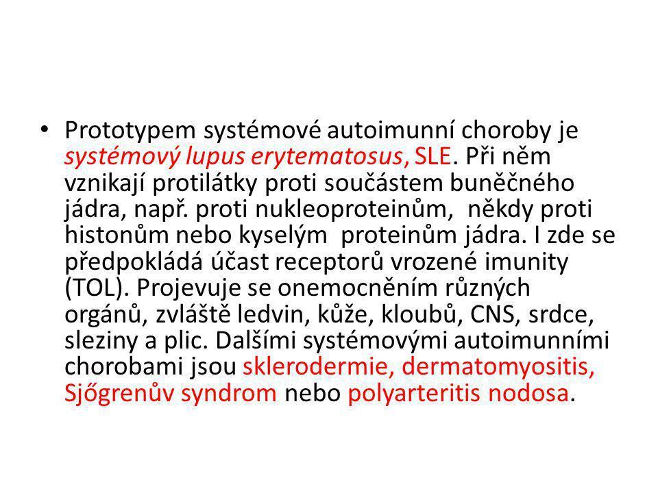 • Prototypem systémové autoimunní choroby je systémový lupus erytematosus, SLE. Při něm vznikají protilátky proti součástem buněčného jádra, např. pro