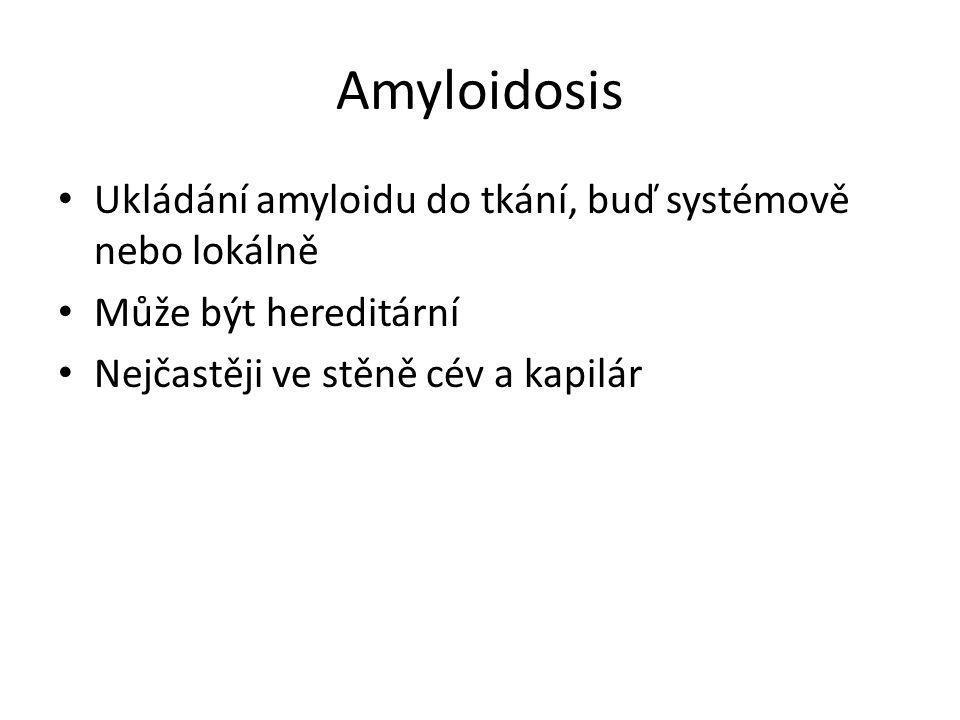 Amyloidosis • Ukládání amyloidu do tkání, buď systémově nebo lokálně • Může být hereditární • Nejčastěji ve stěně cév a kapilár