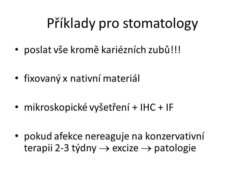 Příklady pro stomatology • poslat vše kromě kariézních zubů!!! • fixovaný x nativní materiál • mikroskopické vyšetření + IHC + IF • pokud afekce nerea
