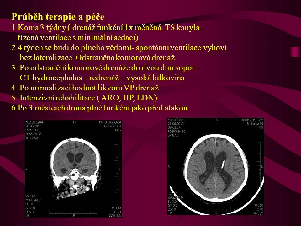 Kazuistika 2 72 letá pacienta přijata v komatu na ARO – počínající mydriasa vlevo, HH 4-5, CT+ CTAG – masivní sak s hematomem F-T, aneurysmaa.cerebri media vlevo Operace téhož dne.
