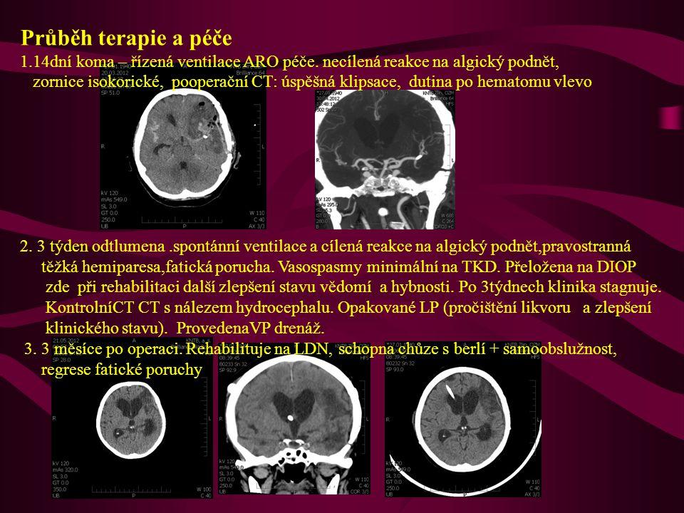 Průběh terapie a péče 1.14dní koma – řízená ventilace ARO péče. necílená reakce na algický podnět, zornice isokorické, pooperační CT: úspěšná klipsace