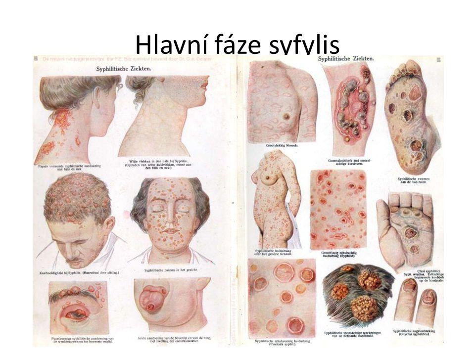 Hlavní fáze syfylis
