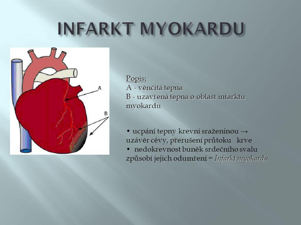 Popis: A - věnčitá tepna B - uzavřená tepna o oblast infarktu myokardu • ucpání tepny krevní sraženinou → uzávěr cévy, přerušení průtoku krve Infarkt myokardu • nedokrevnost buněk srdečního svalu způsobí jejich odumření = Infarkt myokardu