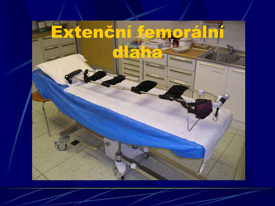 Extenční femorální dlaha