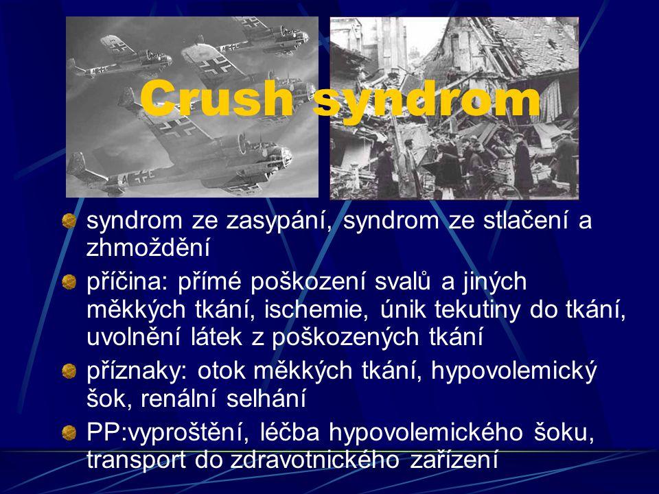 Crush syndrom syndrom ze zasypání, syndrom ze stlačení a zhmoždění příčina: přímé poškození svalů a jiných měkkých tkání, ischemie, únik tekutiny do t