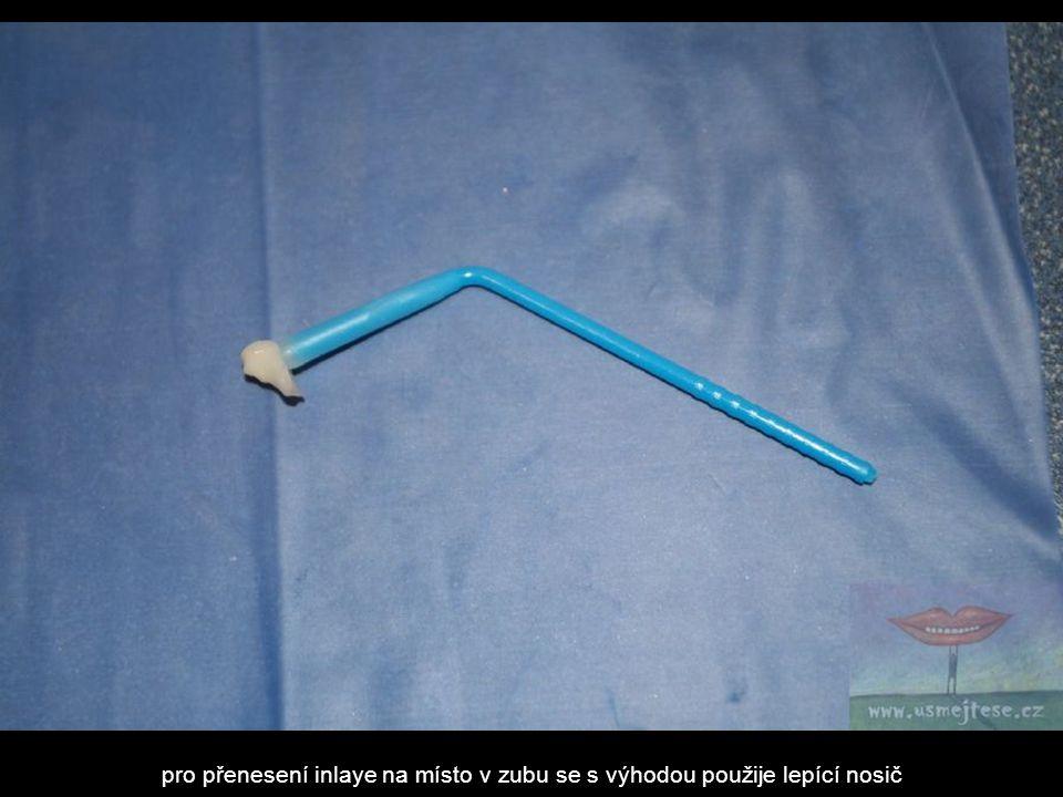 pro přenesení inlaye na místo v zubu se s výhodou použije lepící nosič