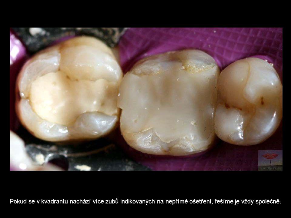 Pokud se v kvadrantu nachází více zubů indikovaných na nepřímé ošetření, řešíme je vždy společně.