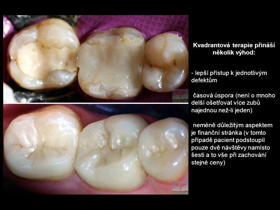 Kvadrantová terapie přináší několik výhod: - lepší přístup k jednotlivým defektům časová úspora (není o mnoho delší ošetřovat více zubů najednou než-l