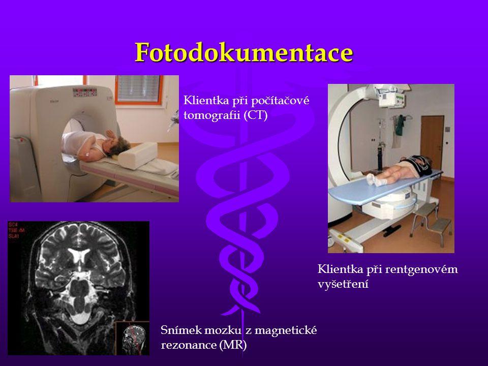 Fotodokumentace Klientka při počítačové tomografii (CT) Klientka při rentgenovém vyšetření Snímek mozku z magnetické rezonance (MR)