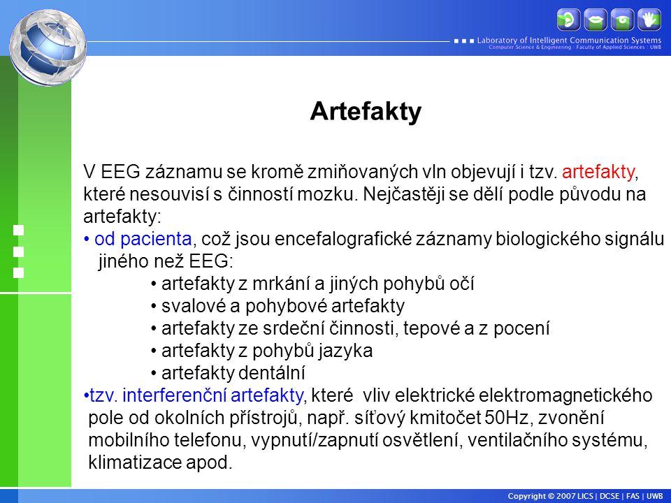 Copyright © 2007 LICS | DCSE | FAS | UWB V EEG záznamu se kromě zmiňovaných vln objevují i tzv.