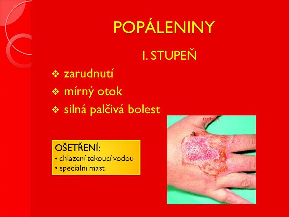POPÁLENINY  I. STUPEŇ  zarudnutí  mírný otok  silná palčivá bolest OŠETŘENÍ: • chlazení tekoucí vodou • speciální mast OŠETŘENÍ: • chlazení tekouc