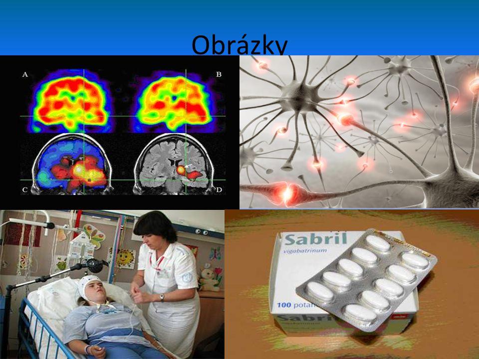 Zdroje • http://epilepsie.ordinace.biz/zachvat.php • http://www.google.cz/search?tbm=isch&hl=cs &source=hp&biw=1280&bih=798&q=epilepsie &gbv=2&oq=epilepsie&aq=f&aqi=g1g- S9&aql=&gs_nf=1&gs_l=img.3..0j0i24l9.1498.