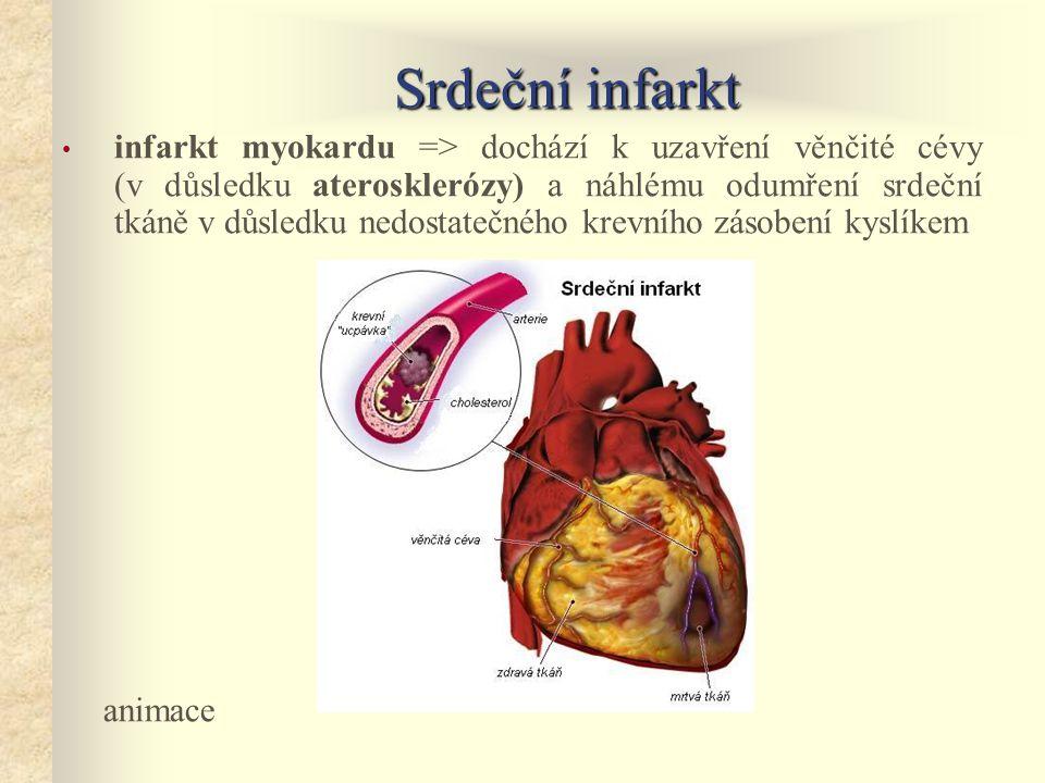 Srdeční infarkt • infarkt myokardu => dochází k uzavření věnčité cévy (v důsledku aterosklerózy) a náhlému odumření srdeční tkáně v důsledku nedostatečného krevního zásobení kyslíkem animace