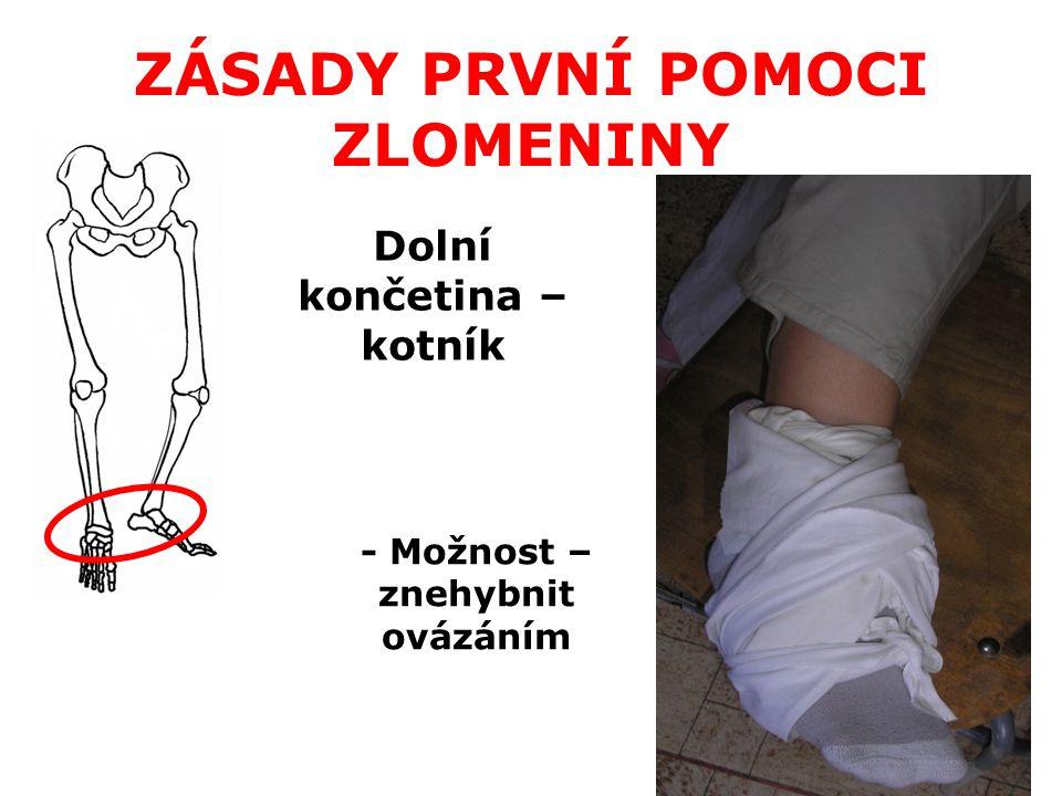 Dolní končetina – dolní část - Vhodná dlaha od kotníku nad koleno - Dlaha nesmí tlačit přímo na klouby, aby nedošlo k jejich poškození