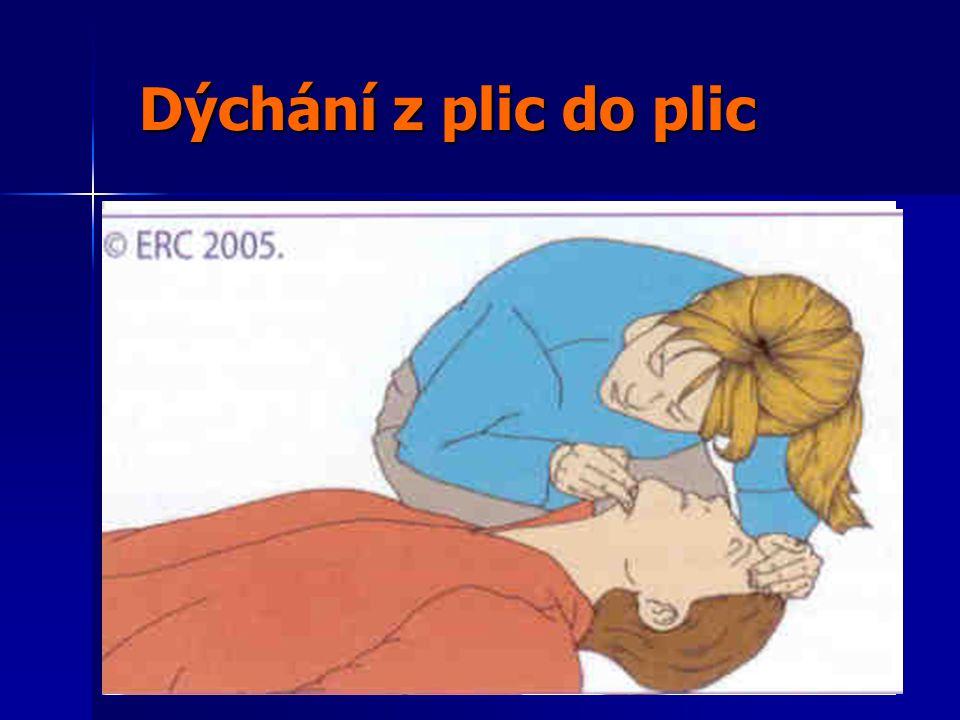 Dýchání z plic do plic Dýchání z plic do plic 1.Záklon hlavy 2.