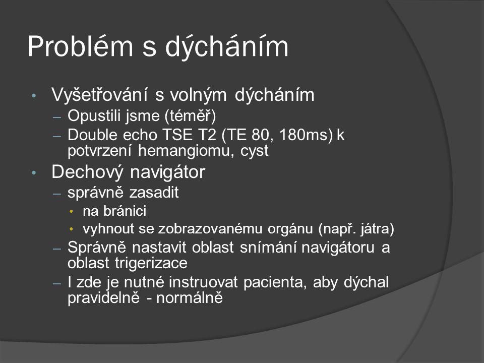 Problém s dýcháním • Vyšetřování s volným dýcháním – Opustili jsme (téměř) – Double echo TSE T2 (TE 80, 180ms) k potvrzení hemangiomu, cyst • Dechový navigátor – správně zasadit • na bránici • vyhnout se zobrazovanému orgánu (např.