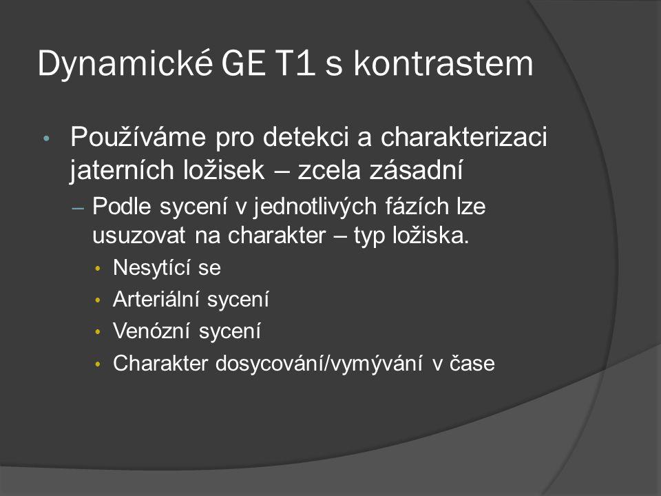 Dynamické GE T1 s kontrastem • Používáme pro detekci a charakterizaci jaterních ložisek – zcela zásadní – Podle sycení v jednotlivých fázích lze usuzovat na charakter – typ ložiska.
