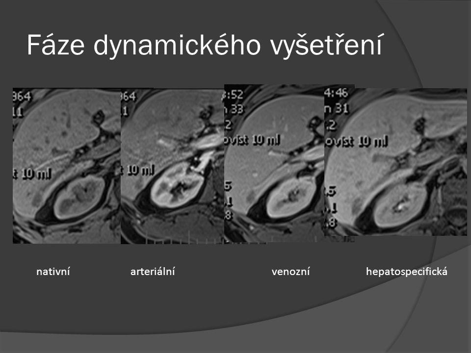 Fáze dynamického vyšetření nativníarteriálnívenozníhepatospecifická