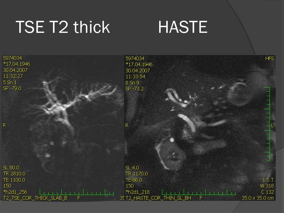 TSE T2 thickHASTE