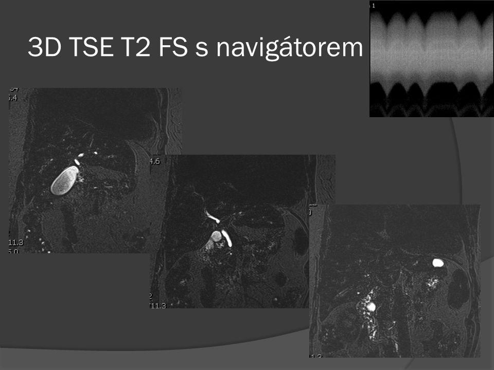 3D TSE T2 FS s navigátorem