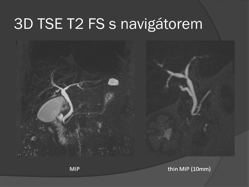 3D TSE T2 FS s navigátorem MIPthin MIP (10mm)