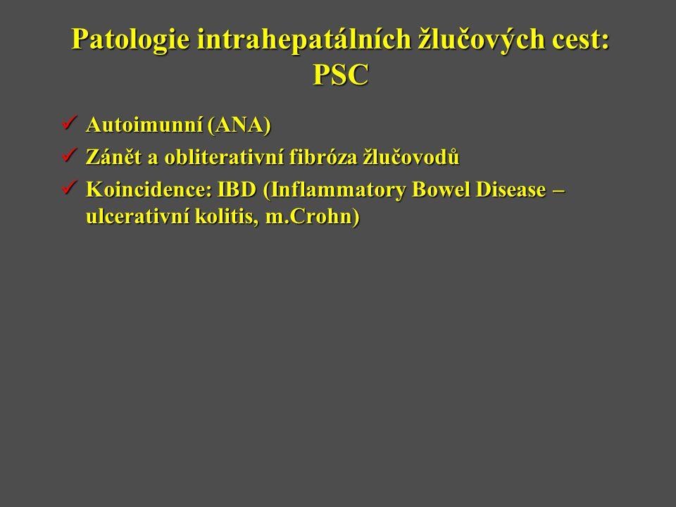 Patologie intrahepatálních žlučových cest: PSC  Autoimunní (ANA)  Zánět a obliterativní fibróza žlučovodů  Koincidence: IBD (Inflammatory Bowel Disease – ulcerativní kolitis, m.Crohn)