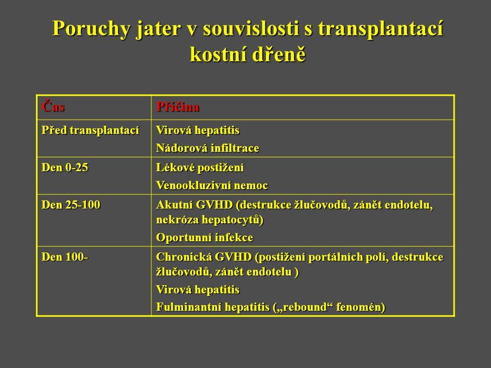 Poruchy jater v souvislosti s transplantací kostní dřeně ČasPříčina Před transplantací Virová hepatitis Nádorová infiltrace Den 0-25 Lékové postižení