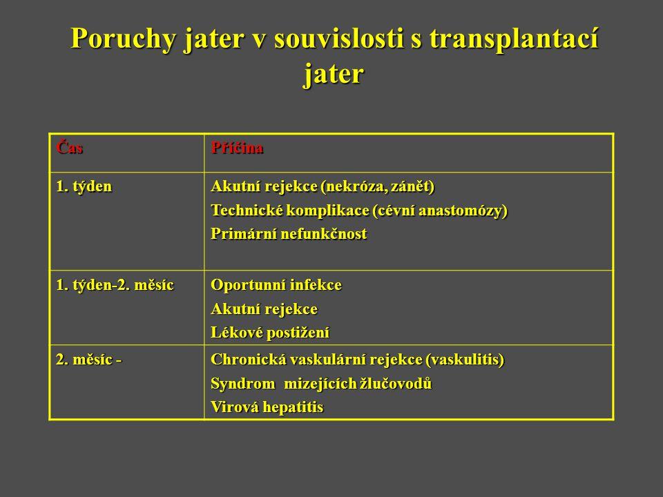 Poruchy jater v souvislosti s transplantací jater ČasPříčina 1. týden Akutní rejekce (nekróza, zánět) Technické komplikace (cévní anastomózy) Primární