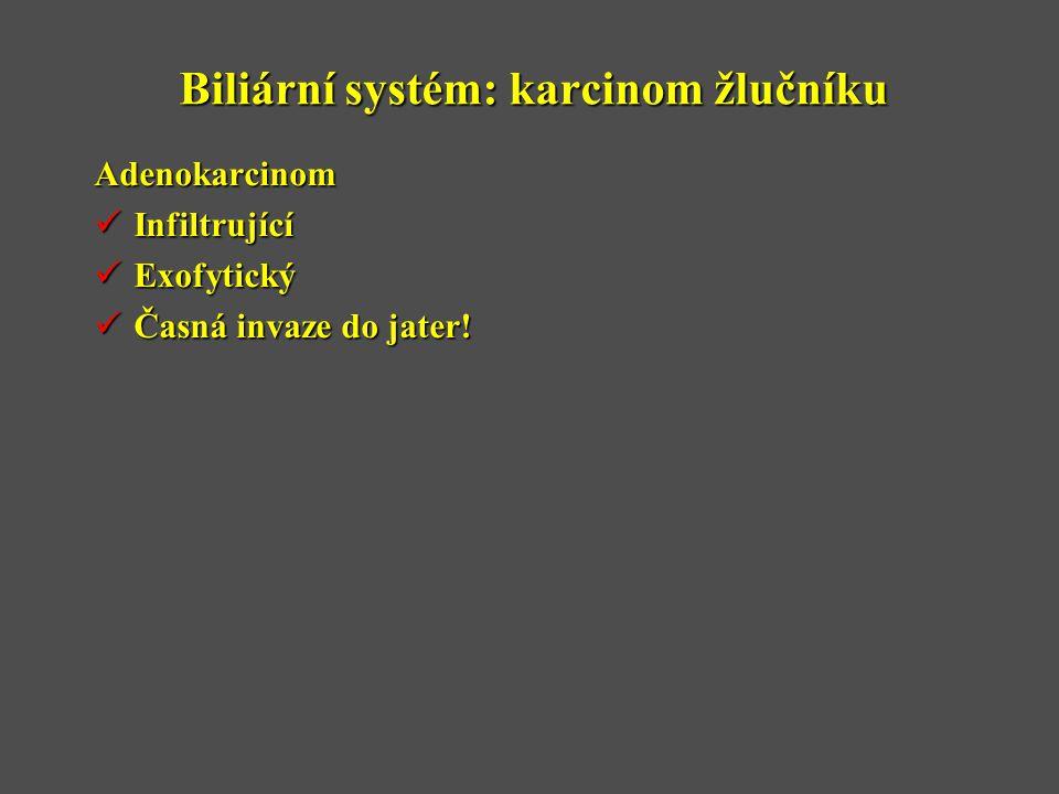 Biliární systém: karcinom žlučníku Adenokarcinom  Infiltrující  Exofytický  Časná invaze do jater!