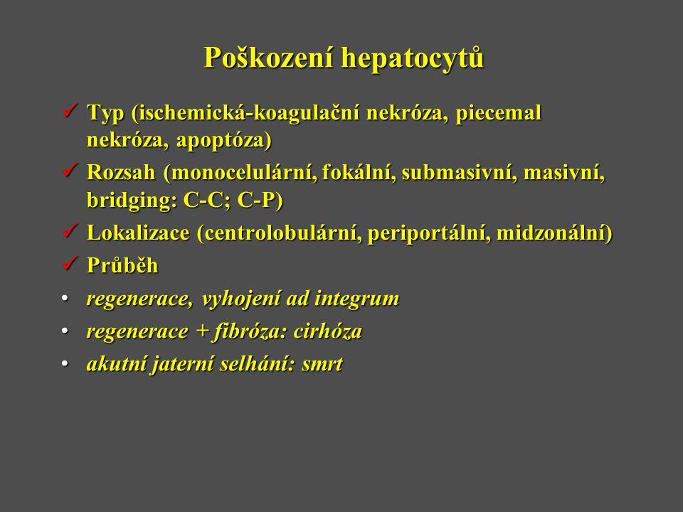 Poškození hepatocytů  Typ (ischemická-koagulační nekróza, piecemal nekróza, apoptóza)  Rozsah (monocelulární, fokální, submasivní, masivní, bridging: C-C; C-P)  Lokalizace (centrolobulární, periportální, midzonální)  Průběh •regenerace, vyhojení ad integrum •regenerace + fibróza: cirhóza •akutní jaterní selhání: smrt