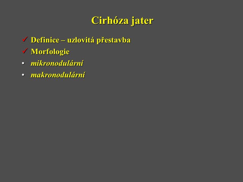 Cirhóza jater  Definice – uzlovitá přestavba  Morfologie •mikronodulární •makronodulární
