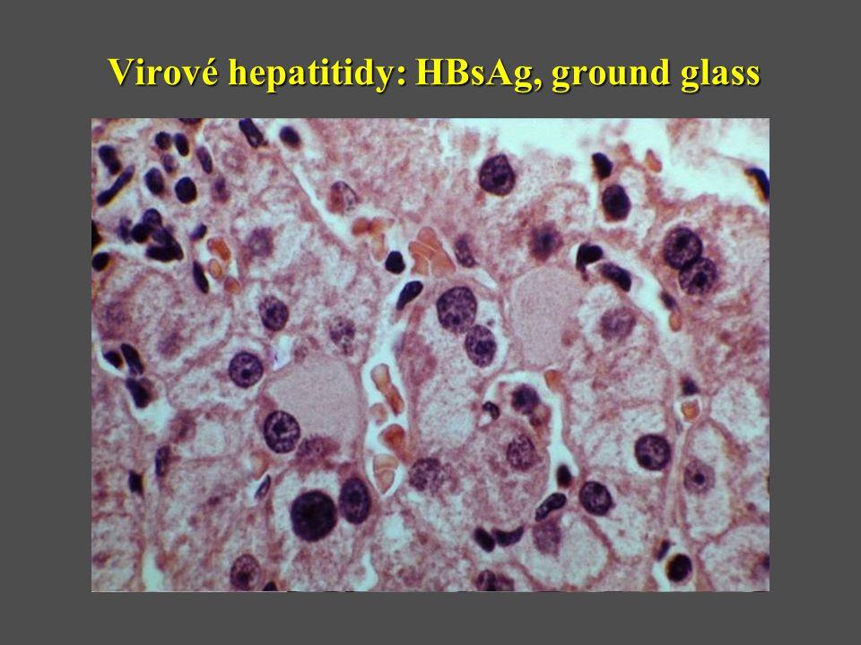 Virové hepatitidy: HBsAg, ground glass