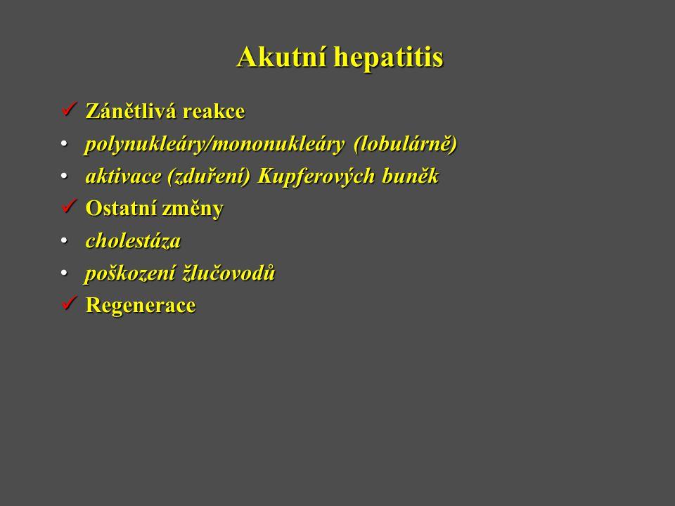 Akutní hepatitis  Zánětlivá reakce •polynukleáry/mononukleáry (lobulárně) •aktivace (zduření) Kupferových buněk  Ostatní změny •cholestáza •poškození žlučovodů  Regenerace