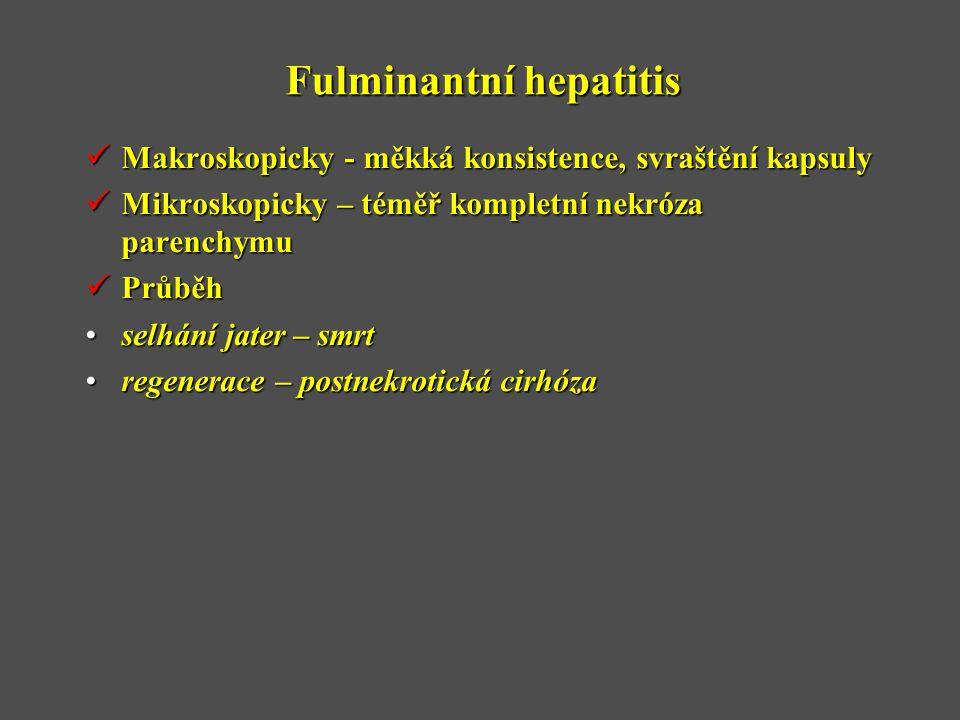 Fulminantní hepatitis  Makroskopicky - měkká konsistence, svraštění kapsuly  Mikroskopicky – téměř kompletní nekróza parenchymu  Průběh •selhání jater – smrt •regenerace – postnekrotická cirhóza