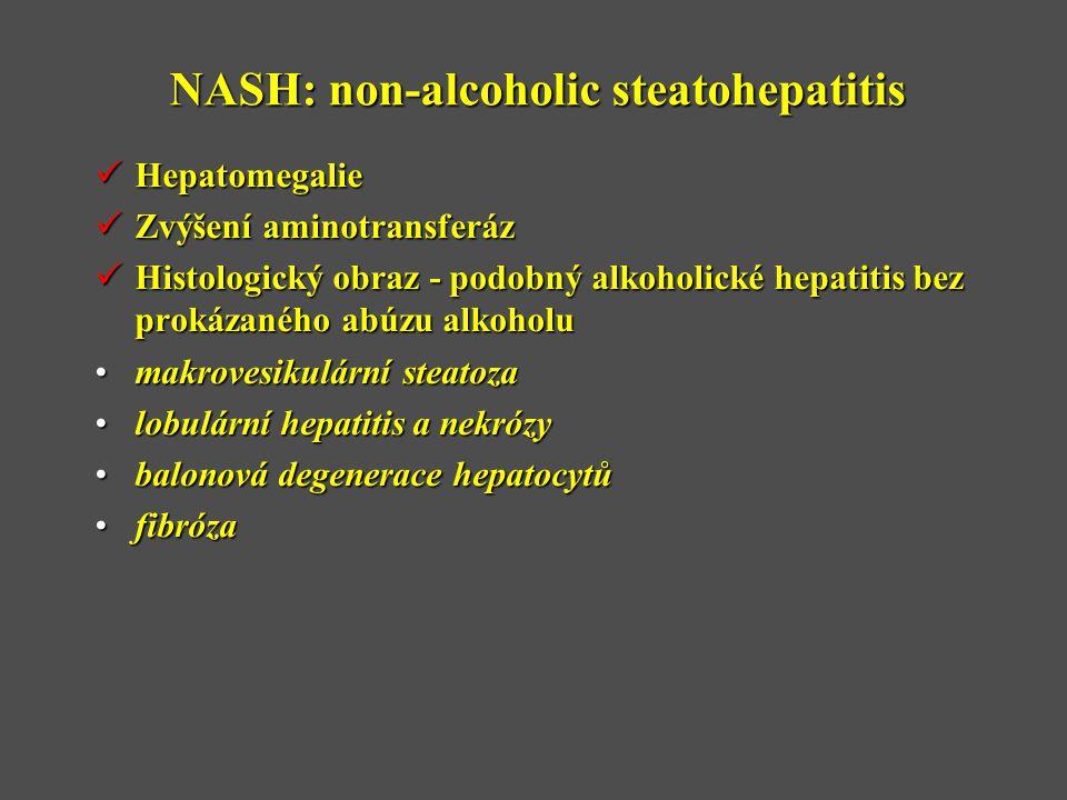 NASH: non-alcoholic steatohepatitis  Hepatomegalie  Zvýšení aminotransferáz  Histologický obraz - podobný alkoholické hepatitis bez prokázaného abúzu alkoholu •makrovesikulární steatoza •lobulární hepatitis a nekrózy •balonová degenerace hepatocytů •fibróza