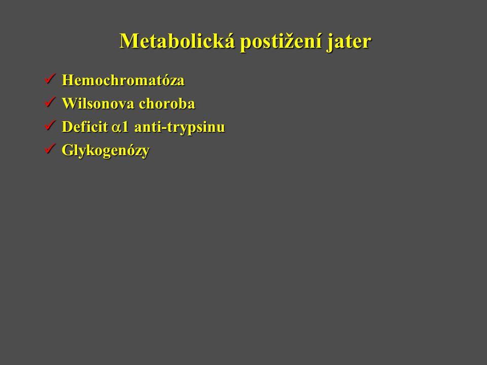 Metabolická postižení jater  Hemochromatóza  Wilsonova choroba  Deficit  1 anti-trypsinu  Glykogenózy