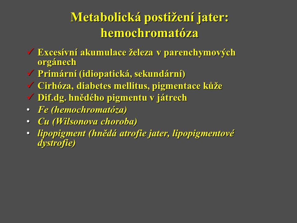 Metabolická postižení jater: hemochromatóza  Excesívní akumulace železa v parenchymových orgánech  Primární (idiopatická, sekundární)  Cirhóza, diabetes mellitus, pigmentace kůže  Dif.dg.