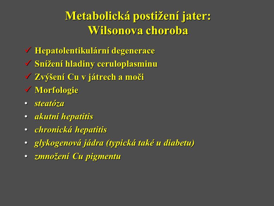 Metabolická postižení jater: Wilsonova choroba  Hepatolentikulární degenerace  Snížení hladiny ceruloplasminu  Zvýšení Cu v játrech a moči  Morfologie •steatóza •akutní hepatitis •chronická hepatitis •glykogenová jádra (typická také u diabetu) •zmnožení Cu pigmentu