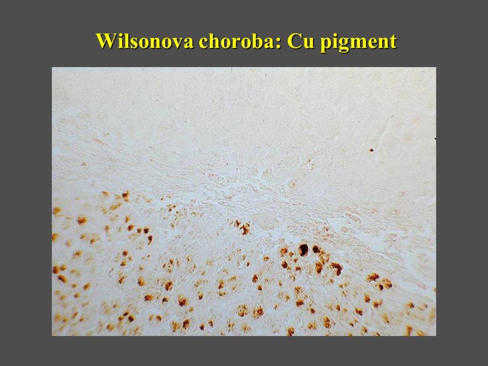 Wilsonova choroba: Cu pigment