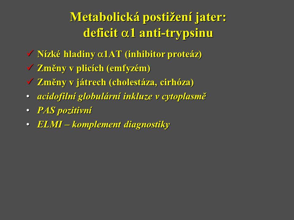 Metabolická postižení jater: deficit  1 anti-trypsinu  Nízké hladiny  1AT (inhibitor proteáz)  Změny v plicích (emfyzém)  Změny v játrech (cholestáza, cirhóza) •acidofilní globulární inkluze v cytoplasmě •PAS pozitivní •ELMI – komplement diagnostiky
