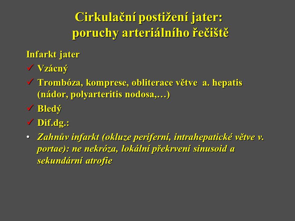 Cirkulační postižení jater: poruchy arteriálního řečiště Infarkt jater  Vzácný  Trombóza, komprese, obliterace větve a. hepatis (nádor, polyarteriti