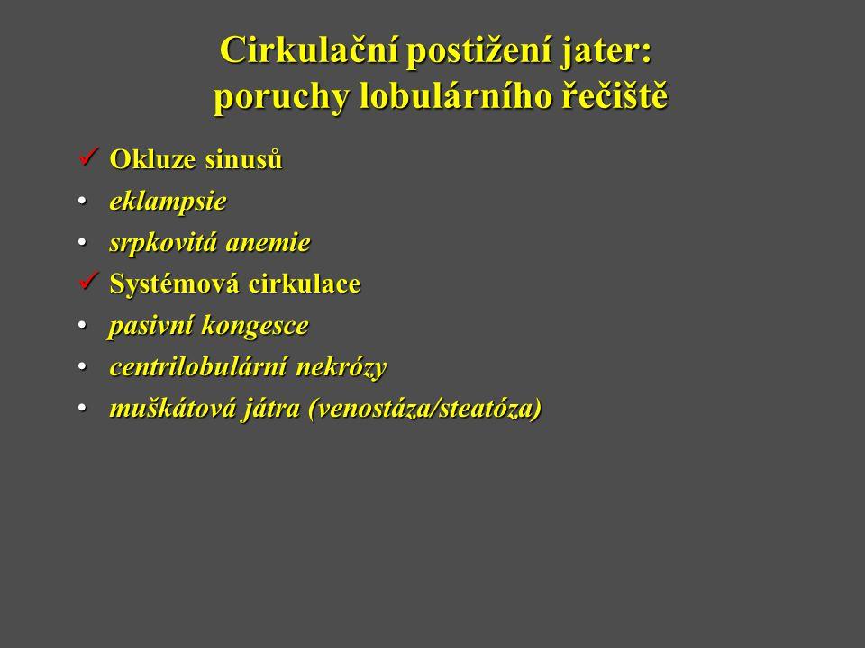 Cirkulační postižení jater: poruchy lobulárního řečiště  Okluze sinusů •eklampsie •srpkovitá anemie  Systémová cirkulace •pasivní kongesce •centrilobulární nekrózy •muškátová játra (venostáza/steatóza)
