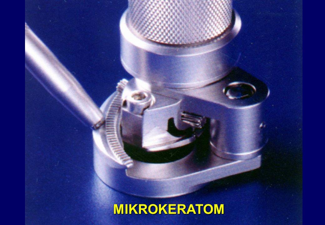 MIKROKERATOM